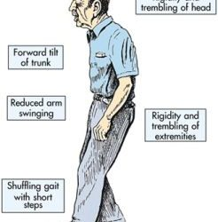 Physical Therapy & Parkinson's Disease