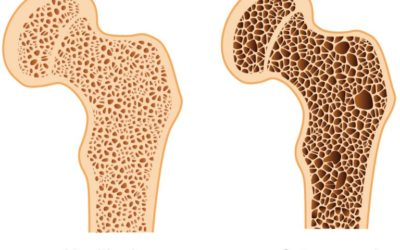 Osteoporosis- What is it and how can physical therapy help my bones?