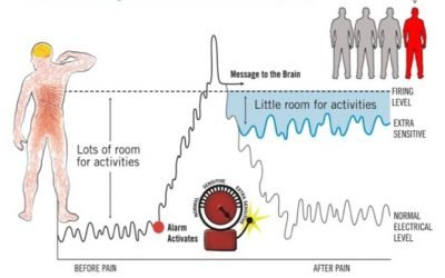 Pain & Your Body's Alarm System
