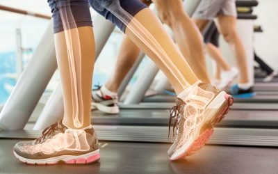 Building and Strengthening Your Bones With Exercise